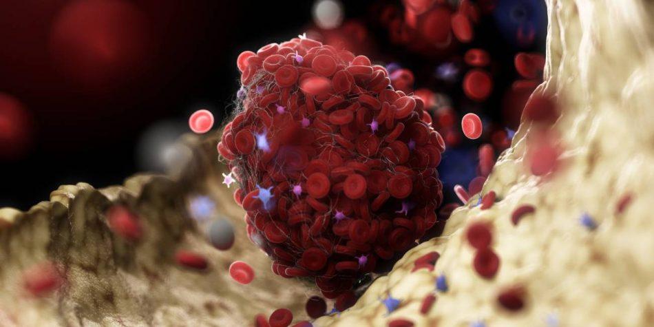 Aumenta la lista de sospechosos tras los trombos asociados a la vacuna de Oxford