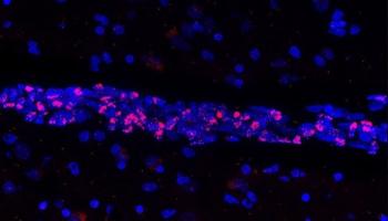 Descubren que el virus causante de la COVID-19 provoca la muerte de importantes células del sistema vascular cerebral
